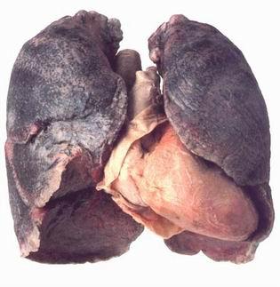 polmonefumatore.jpg
