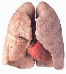 Allen Carrhae - un modo facile di smettere di fumare